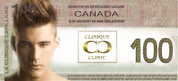 $100 Discount Coupon on The Hair Clinic's Hairpieces for men