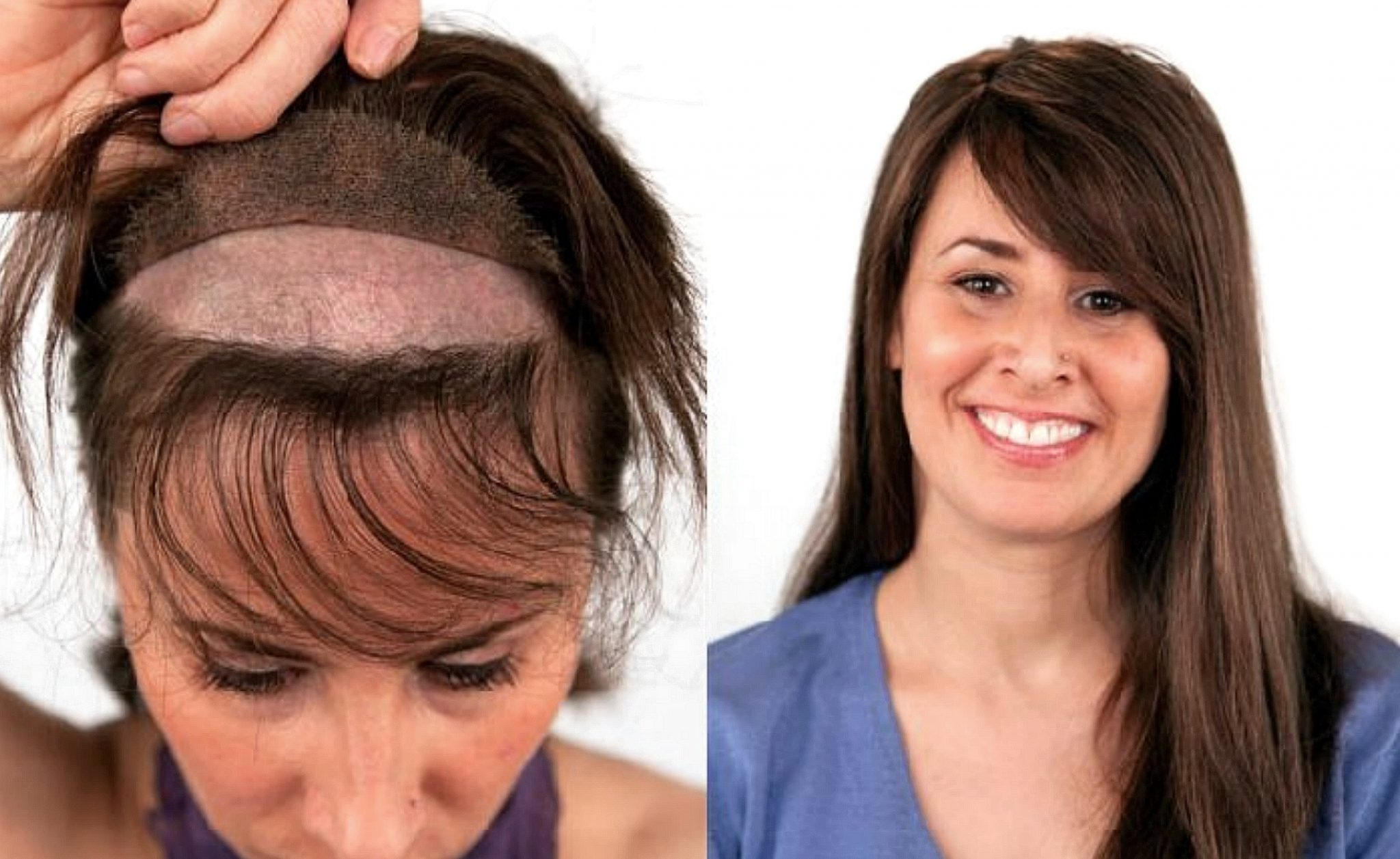 Non Surgical Hair Transplant For Women At The Hair Clinic